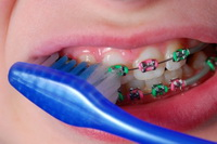 Braces Care - Pediatric Dentist in Mount Airy, MD