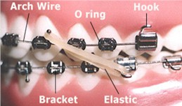 Orthodontic Terms - Pediatric Dentist in Mount Airy, MD